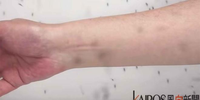 dengue-fever-8