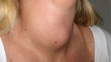 Photo of 甲狀腺亢進不就醫 輕忽小心送命