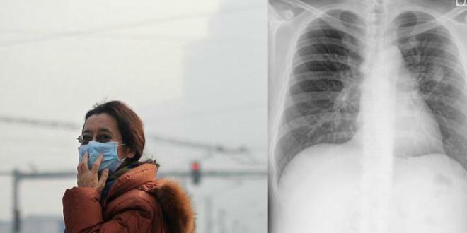 lung cancer_meitu_2
