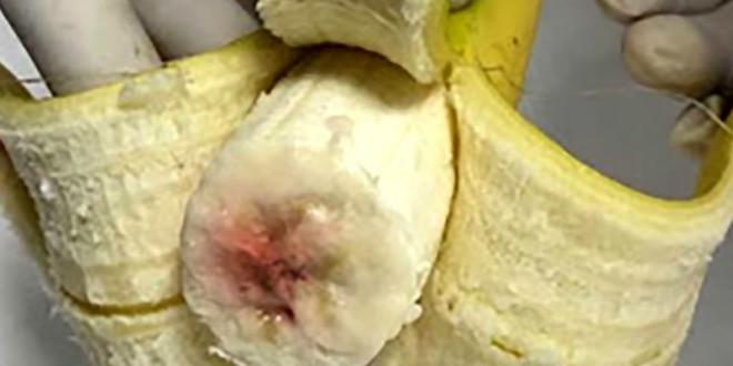 近日網路訊息指稱,有大量受到有心人士注入愛滋病血液的香蕉,呼籲民眾提高警覺。(圖片來源:翻攝Youtube)