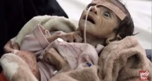 來自葉門五個月大的嬰兒法薩爾,因嚴重營養不良,導致面頰凹陷,雙眼乾澀凸出,最終被活活餓死。