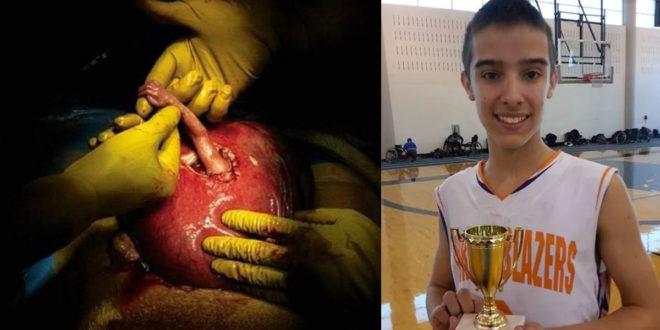 「希望之手」的早產兒現在已是活躍的15歲青少年。(圖片來源:boredomtherapy)