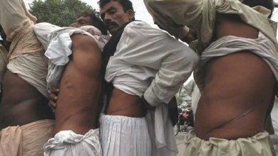 Photo of 貧窮悲歌! 印度驚傳私人醫院非法賣腎