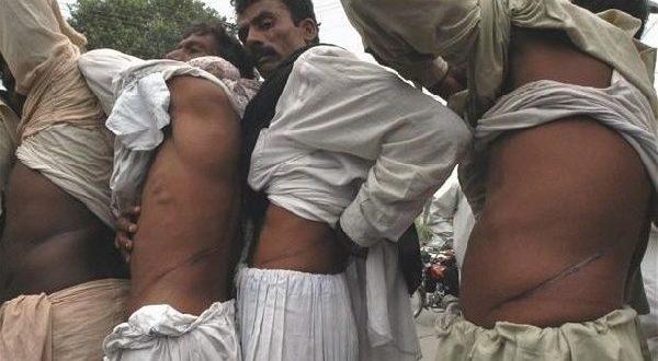 印度器官市場需求量大,許多不法之徒用金錢引誘貧窮的民眾賣腎,以賺取暴利。(圖片來源/翻攝自網路)