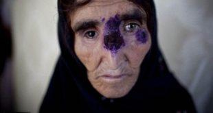 大量的敘利亞難民得到利什曼病,此傳染病會造成永久性毀容,引起收容大量難民之歐洲國家一陣恐慌。 (圖片來源/翻攝自每日郵報)