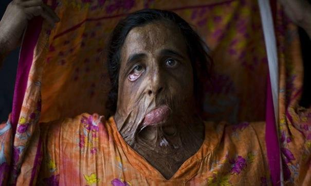 比比(Shahnaz Bibi),35歲,面部遭丈夫以硫酸潑撒。(圖片來源:acelebrationofwomen)