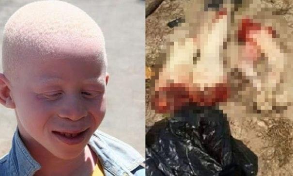 另一名遭到殺害的白化症孩童,手腳被砍下來。(圖片來源:thesummary)