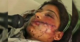19歲巴基斯坦少女莎芭,遭家人榮譽處決後奇蹟生還。(圖片翻攝youtbue)