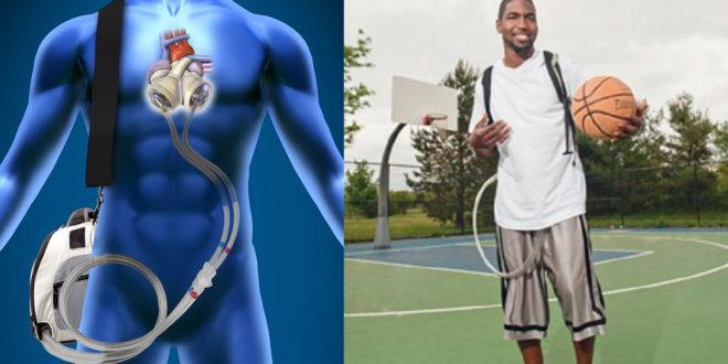 美國一名青年,靠著人工心臟活了18個月。(圖片來源:thememo)