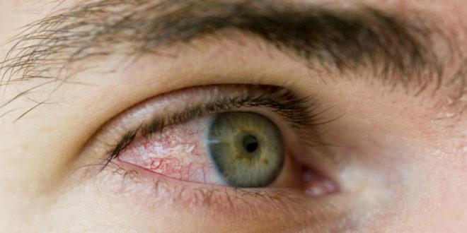 隱形眼鏡配戴太久,會導致角膜缺氧,嚴重恐失明。(圖片來源:翻攝網路)