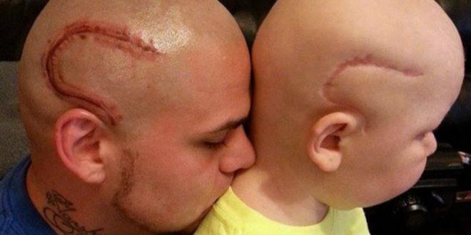 賈許為了讓得腦癌兒子重拾自信,在頭上刺了跟他一樣的疤痕。(圖片來源:http://www.stbaldricks.org/)