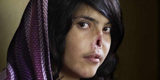 阿富汗被選為世界上對女人最危險的國家,很多人活不過童年 ,更多人被強迫嫁給不想嫁的人。慘遭丈夫割下耳鼻的阿富汗少女莫哈瑪黛(Aesha Mohammadzai),曾因驚悚削鼻照登上《時代》雜誌封面,雖已裝上義鼻,但心理仍未擺脫家暴陰影。(圖片來源/翻攝自網路)