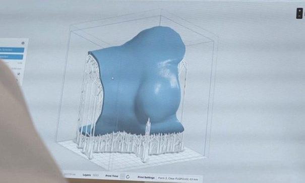 貝齊禮醫師藉由3D列印技術重新打造材質輕便又透氣的面具。(圖片來源:dailymail)