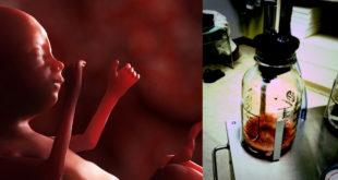 西班牙墮胎大亨違法作晚期墮胎手術,把小孩絞碎後直接沖到下水道,讓法官找不到證據。(圖片來源:healthimpactnews/theblaze)