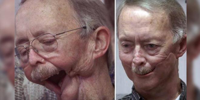 美國一名老先生安德森因癌症失去下巴,在醫療團隊的協助下,戴上3D列印的面具重獲自信。(圖片來源:intoday)