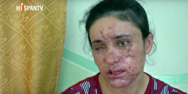 18歲的巴沙爾:「我感謝上帝幫助我,這樣的代價是值得的,因為我逃出來了!」(圖片摘自youtube)
