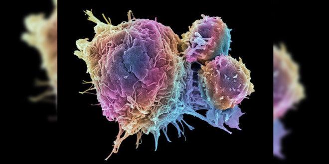 紫外線療法誘發癌細胞自殺,科學家渴望未來取代化療造福更多患者。(圖片來源:thesun)