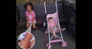 女童的手腕有被綁過的痕跡,據說她曾被綁在床上、椅子上作為懲罰。(翻攝網路)