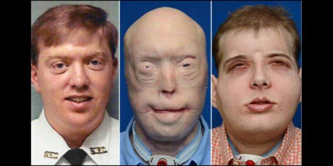 左為哈迪森毀容前,右為臉部移植手術成功後。(翻攝網路)