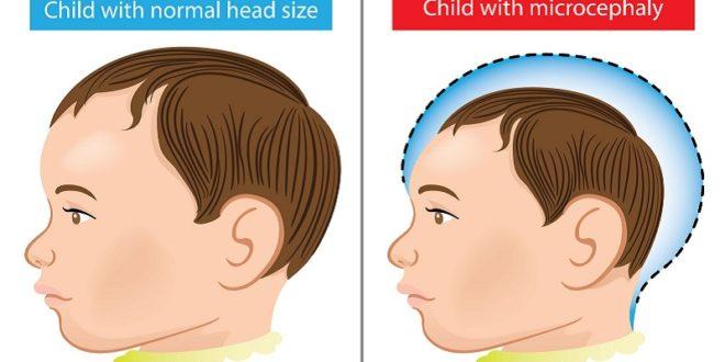 懷孕女性感染茲卡病毒可能造成胎兒小頭畸形,俗稱小頭症,為一種神經發育障礙。(圖片來源/網路)