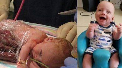 Photo of 兒「內臟外露」母拒墮胎 保鮮膜包內臟手術後痊癒