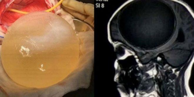 1名12歲的印度女童,腦中竟長了一顆如葡萄柚般大的巨大囊腫。(圖片來源/ 翻攝自網路)