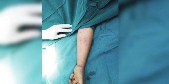 中國一名13歲的少女用筆心刺手臂讓自己保持清醒,導致左手臂發炎。(圖片來源/翻攝自貴州新聞網)