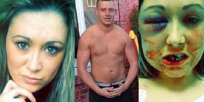 英國一名32歲單親媽媽,公佈自己被男友施暴的照片,提醒女生交友要小心!(圖片來源/翻攝自網路)