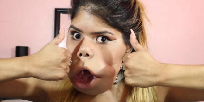 瑪麗莫雖然天生臉部扭曲異常,堅強勇敢的她仍活出美麗人生。(圖片來源:http://www.purebreak.com/)