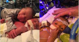 雙胞胎兄弟梅森和霍克出生11天時微笑擁抱,幾天後,霍克(圖右)不幸過世。(圖片來源:Facebook/Mason & Hawk)