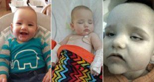 澳洲一名男嬰疑似觸摸超市手推車後將手放入嘴巴,感染病毒導致腦膜炎,臉色變得和石膏一樣蒼白。(翻攝每日郵報)