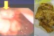 年紀僅12歲的女童罹患胃癌,放療前發現胃壁上有顆腫瘤。(翻攝網路)