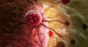 近年來罹癌人數快速攀升,科學家們研發出新的微波療法,將可更深入殺死癌細胞。(圖片來源/版權照片)