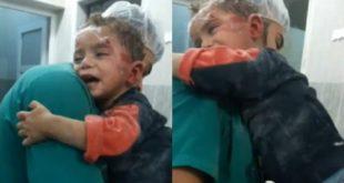 敘利亞美國醫學會,日前於社群媒體上傳一則影像,一名臉上沾了鮮血的阿勒坡男童,在醫院裡哭泣緊抱著護士,令人心碎。(圖片來源/翻攝自網路)