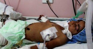 敘利亞4歲女孩阿曼將炸彈當成玩具,造成她嚴重炸傷,不幸身亡 。(圖片來源/翻攝自網路 )