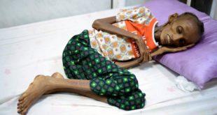 18歲的葉門少女賽達,因長期饑餓,瘦到皮包骨。(圖片來源/翻攝自網路)