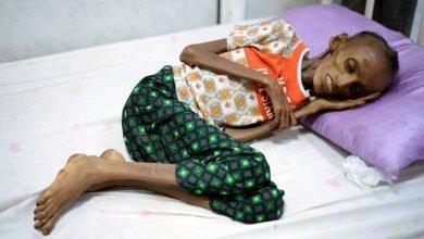 Photo of 葉門內戰加劇糧食危機 18歲少女餓到只剩一層皮