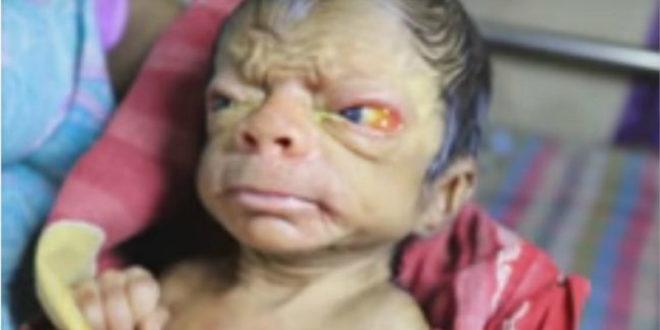 孟加拉男嬰剛出生就滿臉皺紋,疑似罹患早衰症。(圖片來源:翻攝youtube)