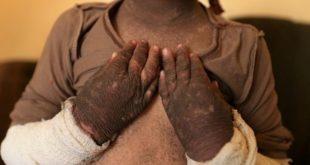 5歲女童杜雅受IS發射之毒火箭波及,全身皮膚發黑、僵硬。(圖片來源/翻攝自網路)