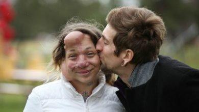 Photo of 妻因罕病毀容 夫不離不棄伴她走過低谷