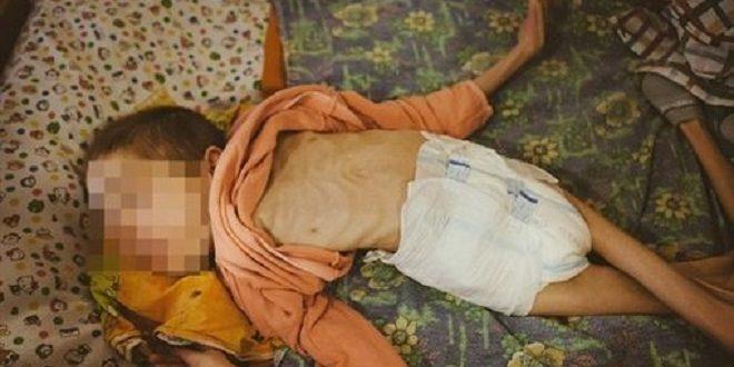 白俄羅斯孤兒院童瘦到皮包骨 「沒有未來的兒童」故意被忽略