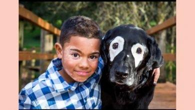 Photo of 黑狗長得好像我!美8歲白斑症男童找回笑容