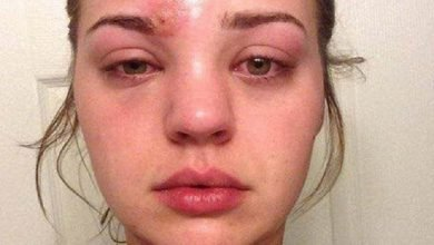 Photo of 美女臉腫痛險失明 竟是擠青春痘引發蜂窩性組織炎