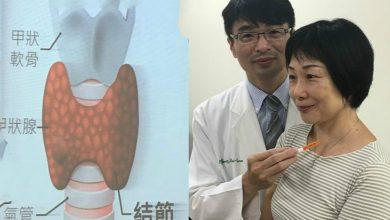 Photo of 射頻燒灼甲狀腺結節 女老師脖子腫塊消