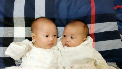 Photo of 雙胞胎間輸血症候群 「胎兒鏡手術」搶救小生命