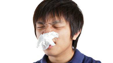 Photo of 長期鼻塞擾睡眠 功能性鼻整形除病根
