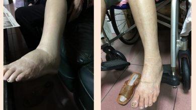 Photo of 阿嬤雙腿腫脹困擾多年 竟是髂靜脈壓迫