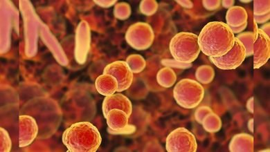 Photo of 新性病「MG」出現 專家:10年內恐成超級細菌