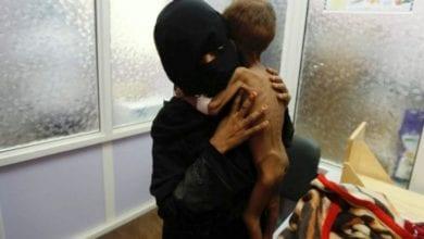 Photo of 葉門內戰520萬幼童餓得只剩皮包骨 未來恐陷毀滅性飢荒