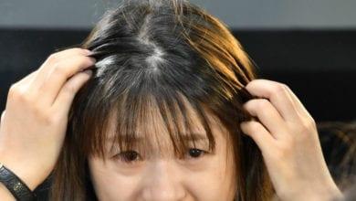 Photo of 這病從「頭」遭殃 輕熟女乾癬掉屑、脫皮、落髮